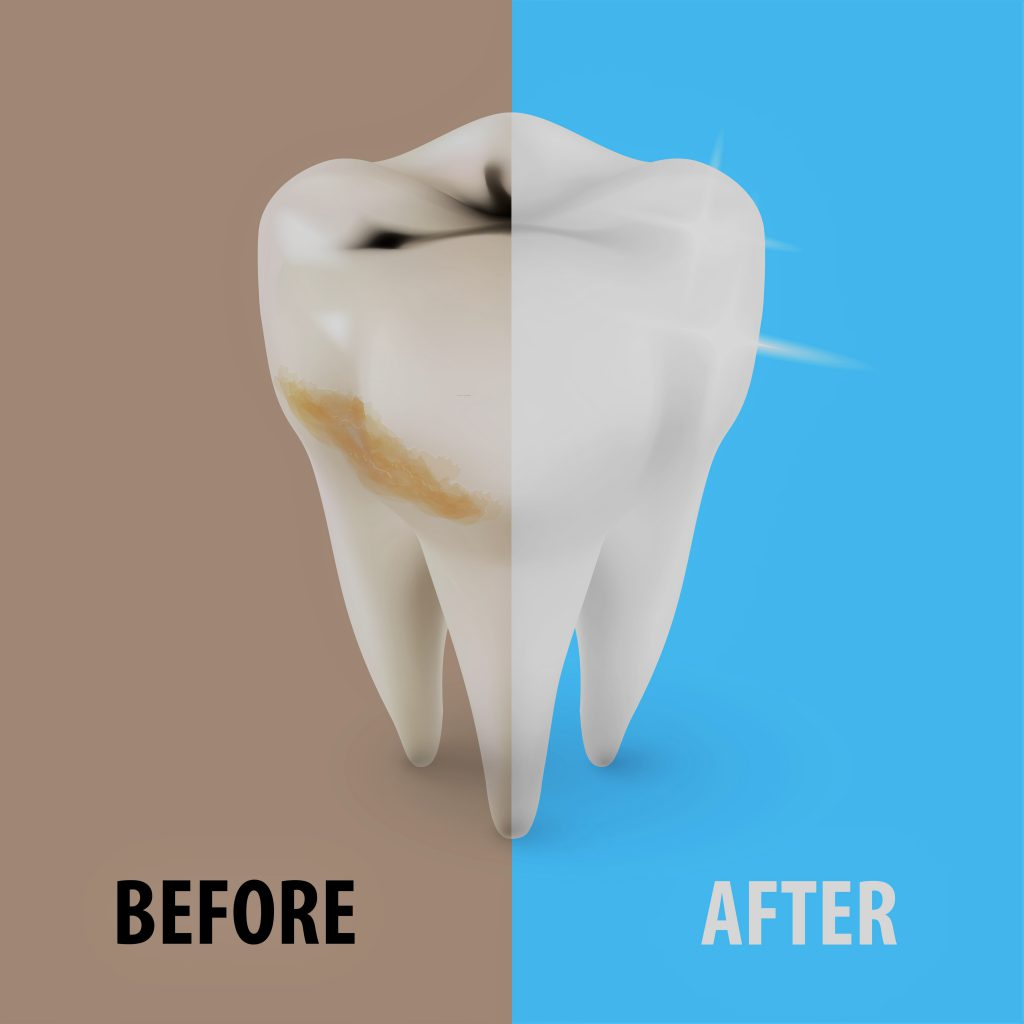 whitening_before-after_w-filter